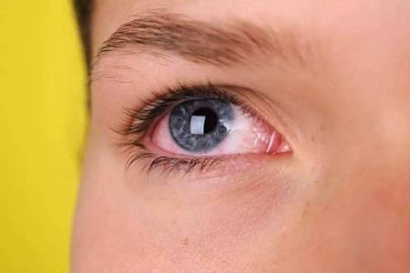 眼睛红血丝是怎么回事,眼睛疲劳发红的五大原因要重视