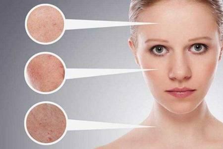 干燥敏感肌用什么护肤品效果最好 适合干燥敏感肌的护肤品推荐大全