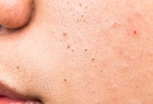 脸上长粉刺了适合敷面膜吗 脸上长粉刺能不能敷面膜