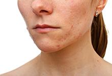 下巴长痘表示身体有哪些问题 下巴长痘表示身体有什么问题