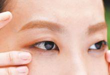 眼周干燥有什么办法 如何改善眼周干燥
